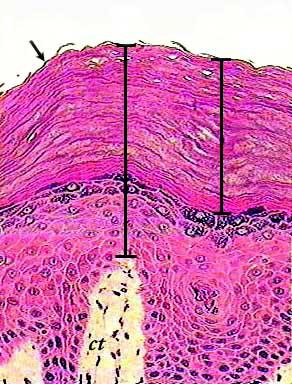 Stratified squamous keratinized epithelium