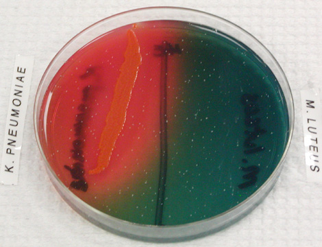 Welcome To Microbugz Hektoen Enteric Agar